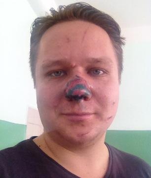 Как сделать сливу по носу